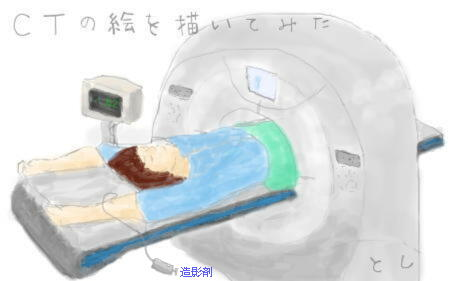 腎細胞がん 術後1年後 造影剤CT 追跡検査